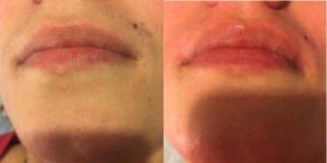 Лазерная эпиляция усиков, верхней губы